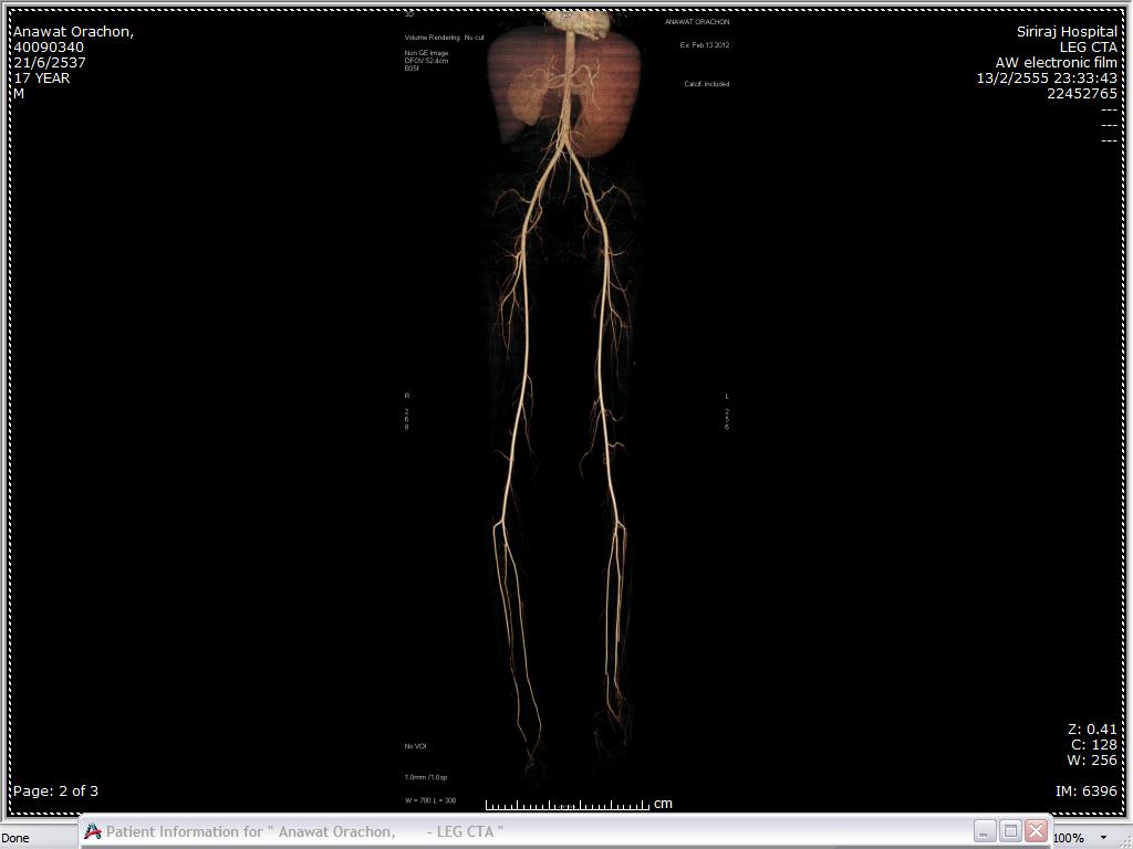 Human Pythiosis