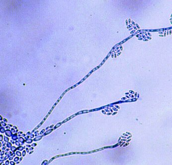 Past Quiz Results - Medical Mycology | The AFWG