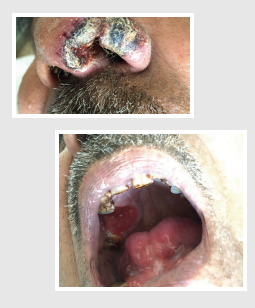 Clinical presentation of the patient with progressive nasal ulcer with crusting and painful palatal ulcer