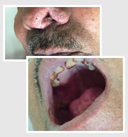 Marked regression in the nasal and palatal ulcers after 6 weeks on oral itraconazole therapy